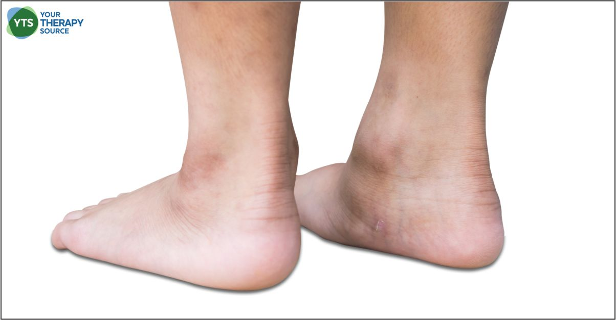 A recent study examined the effect of Kinesio Taping (KT) effect on balance and foot arches in young people with intellectual disability.